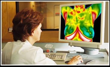 termografia mamária